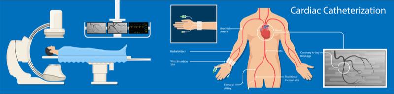 Illustration depicting cardiac catheterization