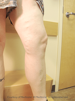Patient's leg after an ablation procedure