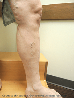 Patient's leg before an ablation procedure