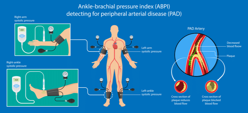 Illustration depicting ankle-brachial pressure index used for detecting peripheral arterial disease