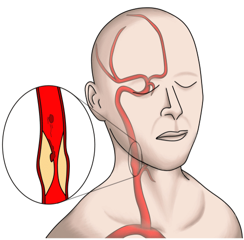 Illustration of carotid artery stenosis